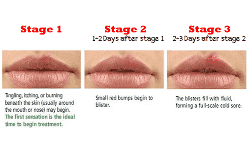Life hacks how to get rid of a cold sore